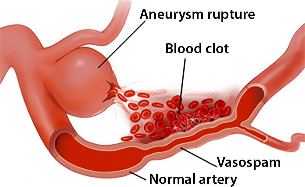 Brain Aneurysm - Basics